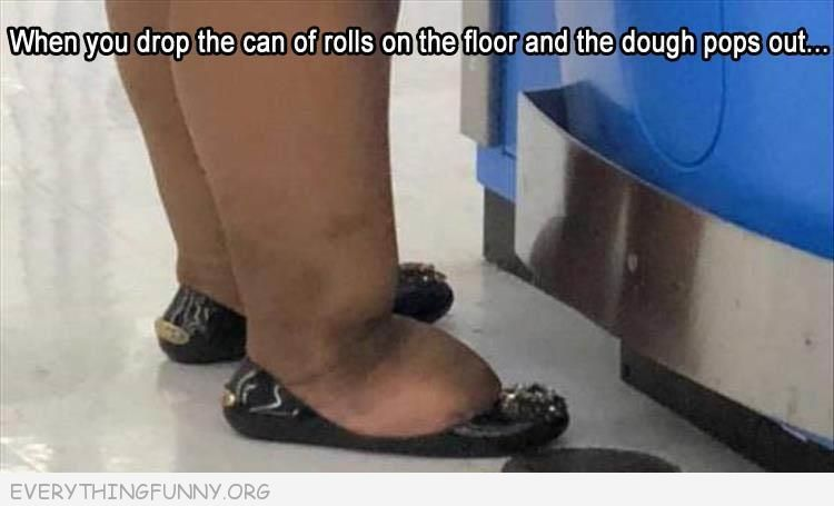 funny chubby legs look like when you drop the can of rolls on the floor and the dough pops out